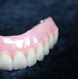 Top partial denture