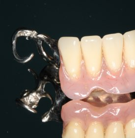 Partial bottom denture