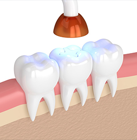 Teeth Colored Fillings Overview