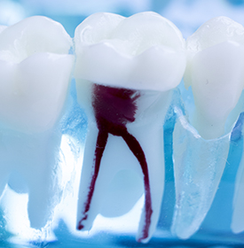 Root Canal Overview