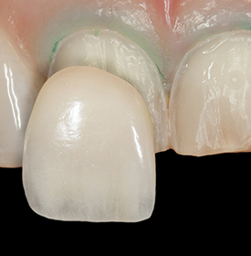 Porcelain Veneers, Inlays & Onlays Overview