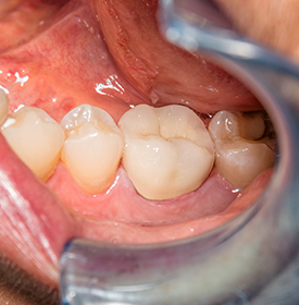 Zirconia Crowns Approach