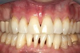 Periodontal Disease Before