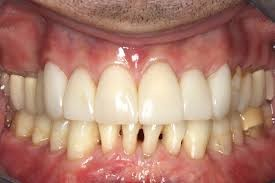Periodontal Disease After
